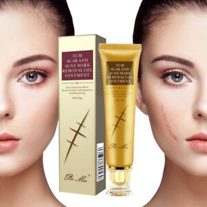 30g Acne Scar Removal Cream Pimples Stretch Marks Face Gel Remove