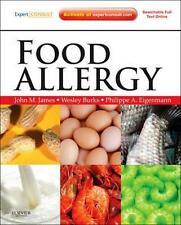 NEW Food Allergy By John James Hardcover Free Shipping