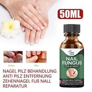 50ml Anti Nagelpilz Behandlung Finger Pilz Entfernung Fußpilz Pflege Reparatur