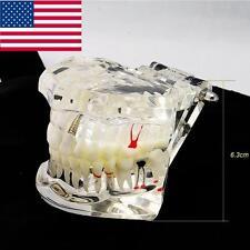 USA Dentist Dental Implant Disease Teeth Model with Restoration & Bridge Tooth+