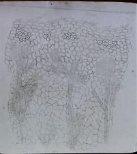 Choke Cherry Stem Showing Myceliumm, Black-knot, Magic Lantern Glass  Slide