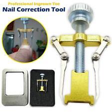 Ingrown Toenail Manicure Pedicure Foot Care Correction Brace Tool Toe Clipper UK