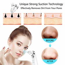 best ope vacuum suction beauty device black head removal