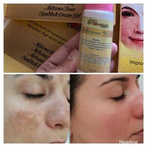 Melasma Toner Removing Dark Spot Acne Freckles Skin Uneven Night Day 50ml