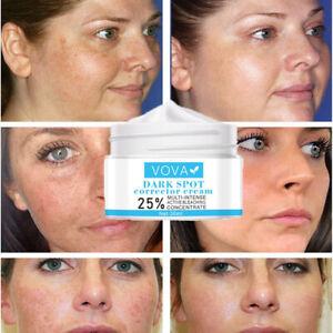 Gel Acne Bleaching Concentrate Dark Spot Corrector Melanin Remove Freckle Cream