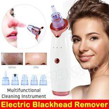 Electric Blackhead Remover Face Cleaner Diamond Pore Vacuum Suction Dermabrasion