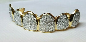 14K Solid Yellow or White Gold 6pc Top REAL Diamond GRILLZ Gold Teeth