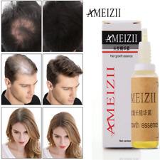 SALE! AMEIZII Hair Growth Essence Hair Loss Liquid dense hair fast sunburst 20ml