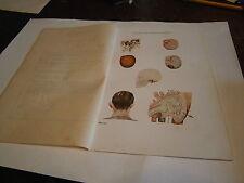 Planche/gravure science corps humain anatomie squelette  maladie de l'oreille 2