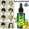 Fast Hair Growth Dense Regrowth Ginger Serum Oil Anti Loss Treatment Essence US