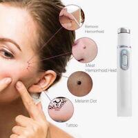 Acne Laser Pen Skin Spots Removal Pen Anti Varicose Spider Vein Eraser Treatment