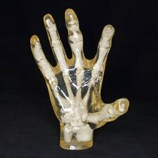 Celebrex Hand Skeleton in Transparent Hand Anatomical Model Pharmaceutical Model