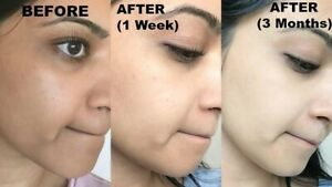 Skin Whitening Soap, Handmade, Dark Skin Whitening, Acne Treatment, Dark Spot