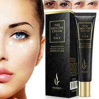 Eye Cream Gel Anti-Aging For Dark Circles Puffiness Wrinkles Bags Most Effective