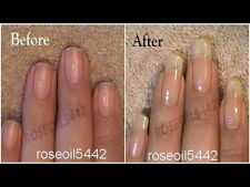 SUPER  PRICE Amazing result NAIL GROWTH & STRONG NAILS Hardener RESTORE NAILS