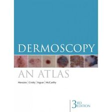 Dermoscopy: An Atlas