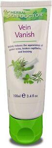 Spider Vein Removal Cream Capillary Bruise Treatment Aloe Vera Herbal Skin UK