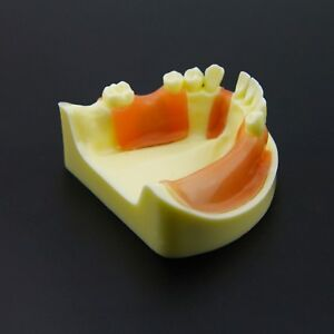 Dental Implant Practice Training Model Lower Jaw Typodont 2004