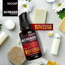 Acnease Facial Serum - Extremely effective on Acne,Blemish and blackheads