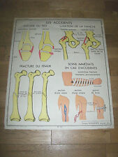 1950 AFFICHE ROSSIGNOL 11.Les OS et ARTICULATIONS/12.Les ACCIDENTS ANATOMIE
