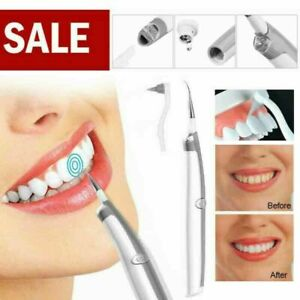 Electric Dental Tooth Stain Polisher Teeth Whitener Plaque Eraser Remover US