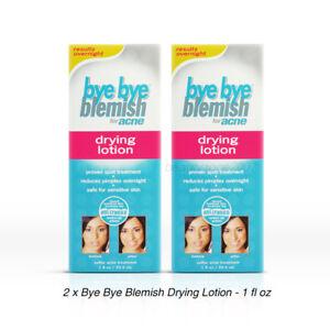 2 x Bye Bye Blemish Drying Lotion for Acne - 1 fl oz / 29.5 mL