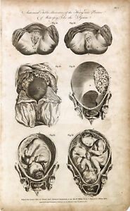 MIDWIFERY - Anatomical Illustrations - Theory and Practice - 1791 Print #B881