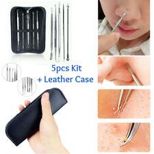 Blackhead Whitehead Pimple Acne Blemish Remover Loop Stainless Steel Tools-5pcs
