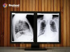 Pair (x2) Barco Coronis 3MP MDCG-3120 Grayscale Diagnostic Radiology Monitors