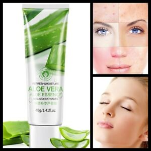 Very Effective Clarifying Aloe Gel Strong Scar Removal Spot & Anti Wrinkle Cream