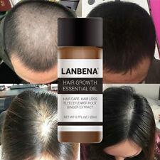 LANBENA Anti Hair Loss Essence Fast Sunburst Dense Hair Growth Product Hair Care