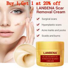 LANBENA Acne Scar Removal Shrink Pores Gel Whitening Face Cream Skin Care 40g!!!
