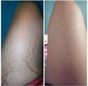 Magical Stretch Mark Gel. 100% organic real result