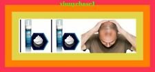 2 MONTH SUPPLY OF KIRKLAND FOAM MINOXIDIL 5% MENS HAIR LOSS REGROWTH SHAMPOO