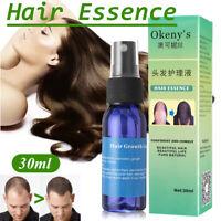 Okeny's Brand Yuda Pilatory Stop HairLoss Fast Hair Growth Spray Liquid