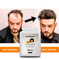 Biotin Hair Growth Pills Prevent Loss Fast Natural Nutrition Vitamin UK Made