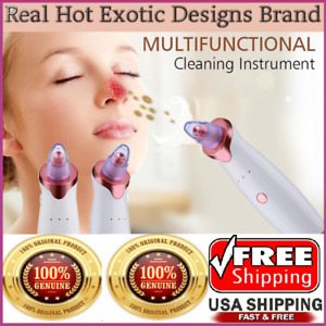 Electric Blackhead Remover Cleaner Face Diamond Pore Vacuum Suction Dermabrasion