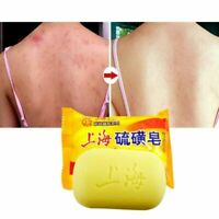 Shanghai Sulfur Soap Oil-control Acne Treatment Blackhead Remover Soap 85g White
