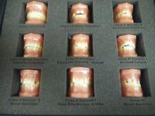 Models Plus Orthodontic Consultation Model Series Kit 290600 Pediatric Models