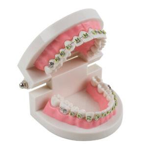 Dental Schaumodell Orthodontische Zahnmodell Typodont Demonstration Teeth Model