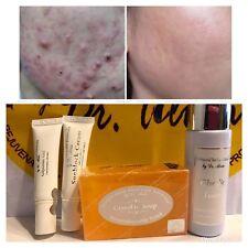 Dr. Alvin Professional Skin Care Formula Anti-Acne Pimples Glycolic Set