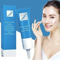 Scar Remover Acne Spots Removal Serum Face Skin Repair Stretch Marks Cream New