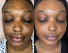 Face Magic Glow 7-14 Day Lightening Cream
