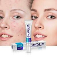 Face Skin Care Acne Removal Cream Spots Scar Blemish Marks Authentic Sale L0C0