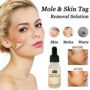 Organic Tags Solutions Serum Mole & Skin Tag Removal SolutionPainless