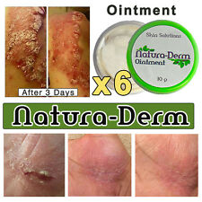 Natural Herb NATURA-DERM OINTMENT Eczema Psoriasis RESULTS IN 7 DAYS Guarenteed