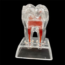Dental Tooth Oral Teaching Model Tooth Anatomical Model Removable Transparent
