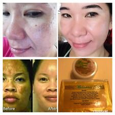 Melasma Cream Soap Whitening For Dark Spot Severe Anti-Acne 100% Safe Effective