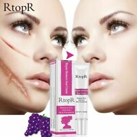 RtopR Acne Scar Stretch Marks Remover Cream Skin Repair Face Cream Cool Acne