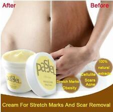 Skin Cream Scar Stretch Marks Removal Repair Care Body Mark Acne Remover Gel New